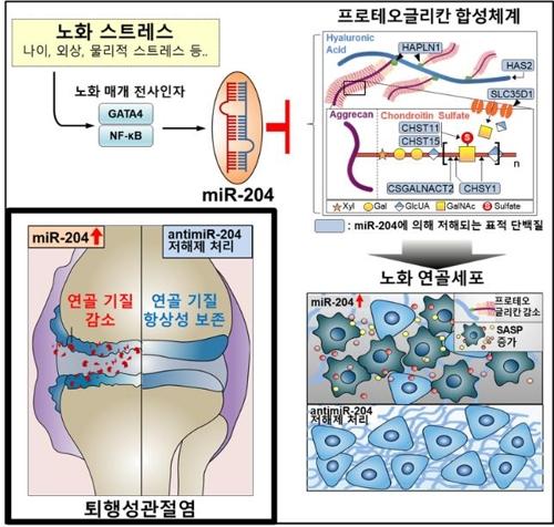 노화로 인한 퇴행성관절염 발병 과정