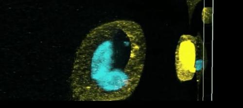 노화 세포의 신진대사