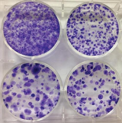 베타 카테닌(상 우)과 임포틴-11(하 좌우)을 제거하면 암세포 성장이 억제된다.