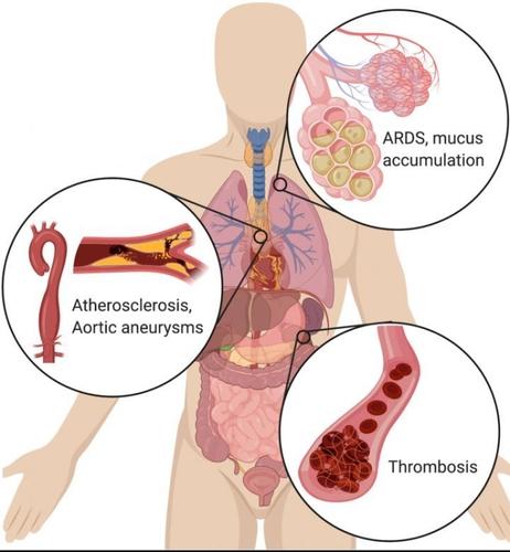 기관별 NETs 유발 증상
