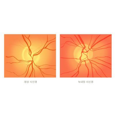 정상 시신경(왼쪽)과 녹내장 시신경(오른쪽)