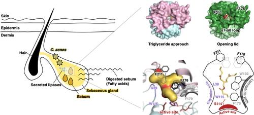 여드름 발생 과정(왼쪽)과 지방분해효소 구조