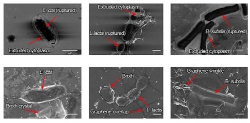 일반 현미경(위)으로 본 죽은 세포와 전자현미경(아래)으로 관찰한 살아있는 세포