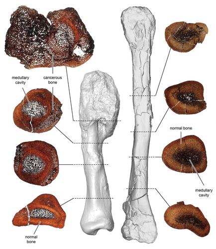 골육종 뼈(왼쪽)와 정상 뼈 화석 비교