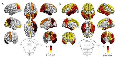 새로운 유전인자가 대뇌피질 위축을 일으키는 모습