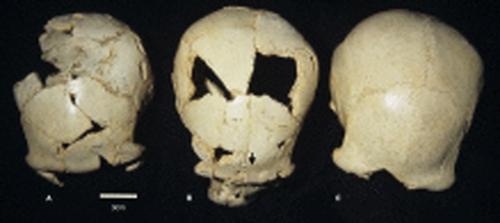 '시마 데 로스 우에소스'에서 발굴된 고인류 화석