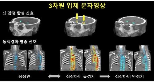 대뇌 감정영역-동맥경화성 염증활성도 삼차원 입체 분자 영상