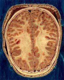 뇌의 회색질과 백질
