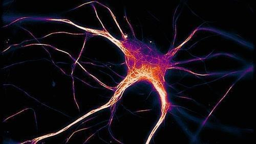 뉴런에 침적한 변형 타우 단백질