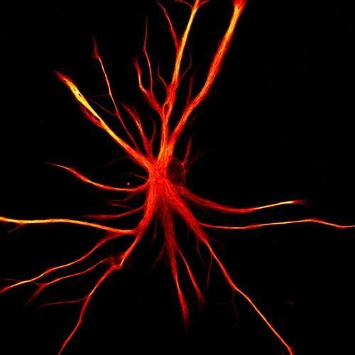 인간의 유도만능줄기세포(iPSCs)에서 유래한 성상교세포