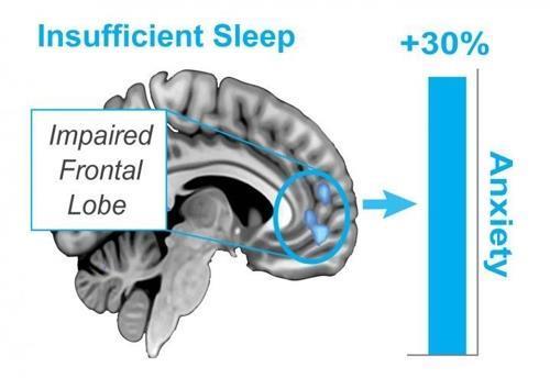수면이 부족하면 불안 수위도 높아진다