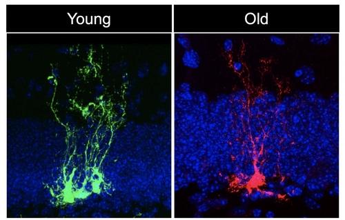 어린 생쥐(녹색)와 늙은 생쥐(적색)의 신경줄기세포
