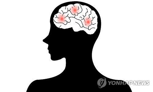 뇌졸중 뇌출혈(일러스트)